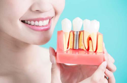 Картинки по запросу Имплантация зубов - путь к красивой улыбке