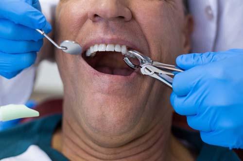 Через какое время после удаления зуба можно ставить имплант: сроки и условия
