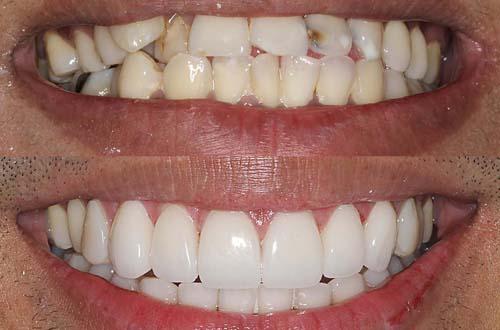 Кривые зубы виниры фото