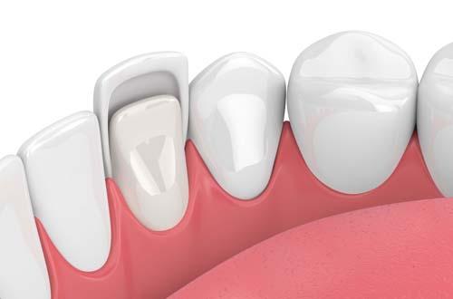 Композитные виниры на зубы – фото, отзывы, цены. – Композитные виниры в Москве | Implant City