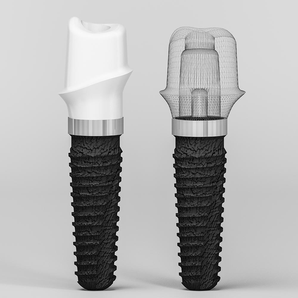 Коронки на имплант - цены установки коронки на имплант в Москве